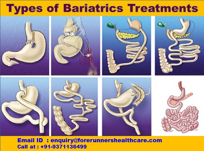 Types of Bariatric Treatments in India