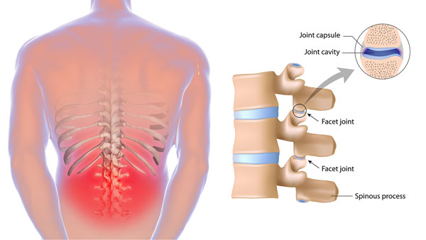 Back ache surgery with top hospitals in Chennai