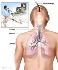 Lung Cancer Treatment and Surgery in India