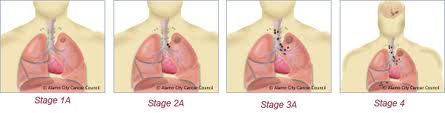 Types of Lung Cancer Surgery