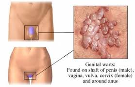 What are Causes of Cervical Cancer