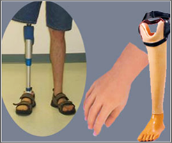 Artificial Limb Prosthesis Surgery India Low Cost Benefits