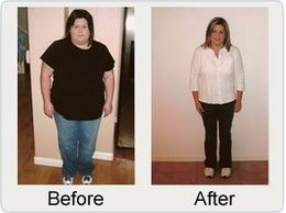 Best Obesity Surgery India Experience