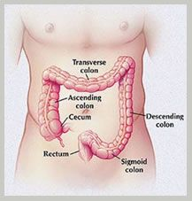 Colon Cancer Surgery in India