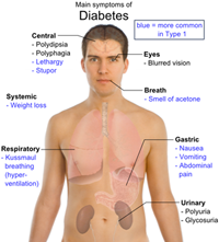 Low Cost Diabetes Surgery in India.