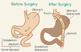 Gastric Bypass Surgery in India