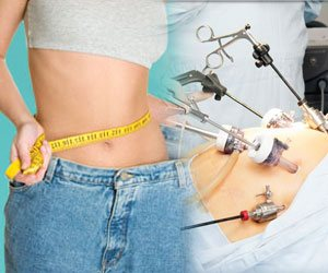 Obesity Surgery in India at Affordable Cost