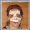 rhinoplasty surgery,rhinoplasty surgery India,rhinoplasty surgery Mumbai,rhinoplasty,rhinoplasty India