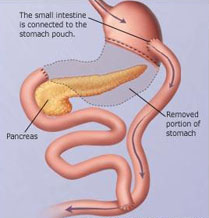 gastric bypass surgery types, gastric bypass surgery risks, gastric bypass surgery alternatives