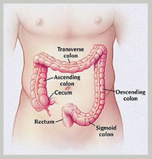 low cost colon cancer surgery India, advantages colon cancer surgery India, colon cancer surgery India