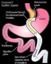gastric bypass surgery benefits, gastric bypass surgery candidates, gastric bypass surgery types