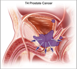 prostate cancer treatment india